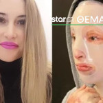 Η Ιωάννα Παλιοσπύρου πριν και μετά την επίθεση με βιτριόλι