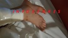 Σέρρες: ο 9χρονος που του επιτέθηκαν σκύλοι
