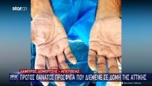 Χέρια Νοσηλευτή Μετά Από Τα Τεστ covid