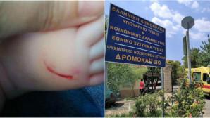 Είχε «χτυπήσει» και στα βόρεια προάστια η 54χρονη που χαράκωνε μωρά!