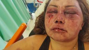 Η γυναίκα που έπεσε θύμα ξυλοδαρμού
