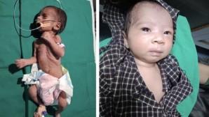 Η μικρούλα από την Ινδία πριν και μετά