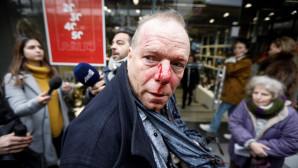 Άγρια επίθεση σε Γερμανό φωτογράφο στο Σύνταγμα