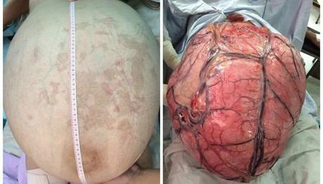 Αφαίρεσαν όγκο 32 κιλών από την κοιλιά γυναίκας