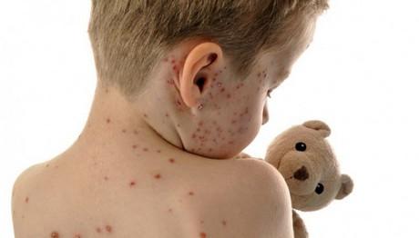 Αυξάνονται τα κρούσματα ιλαράς στην Ελλάδα