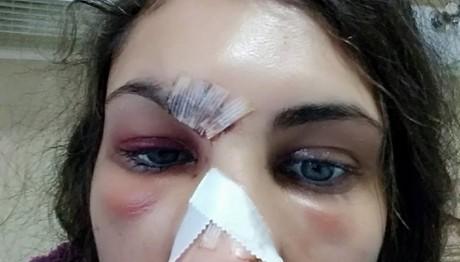 Στο νοσοκομείο η Ναστάζια Μητροπούλου