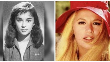 Δες πώς άλλαξαν πασίγνωστες ηθοποιοί μετά από πλαστικές